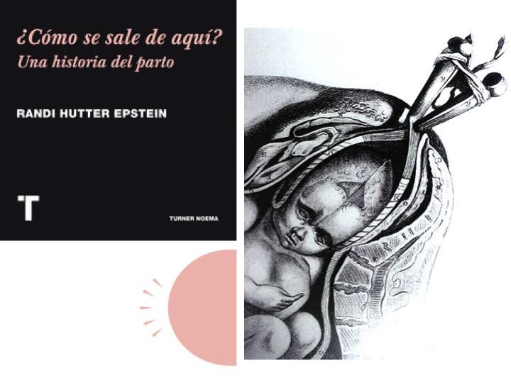 ¿Como se sale de aquí?  – Una historia objetiva de la obstetricia moderna