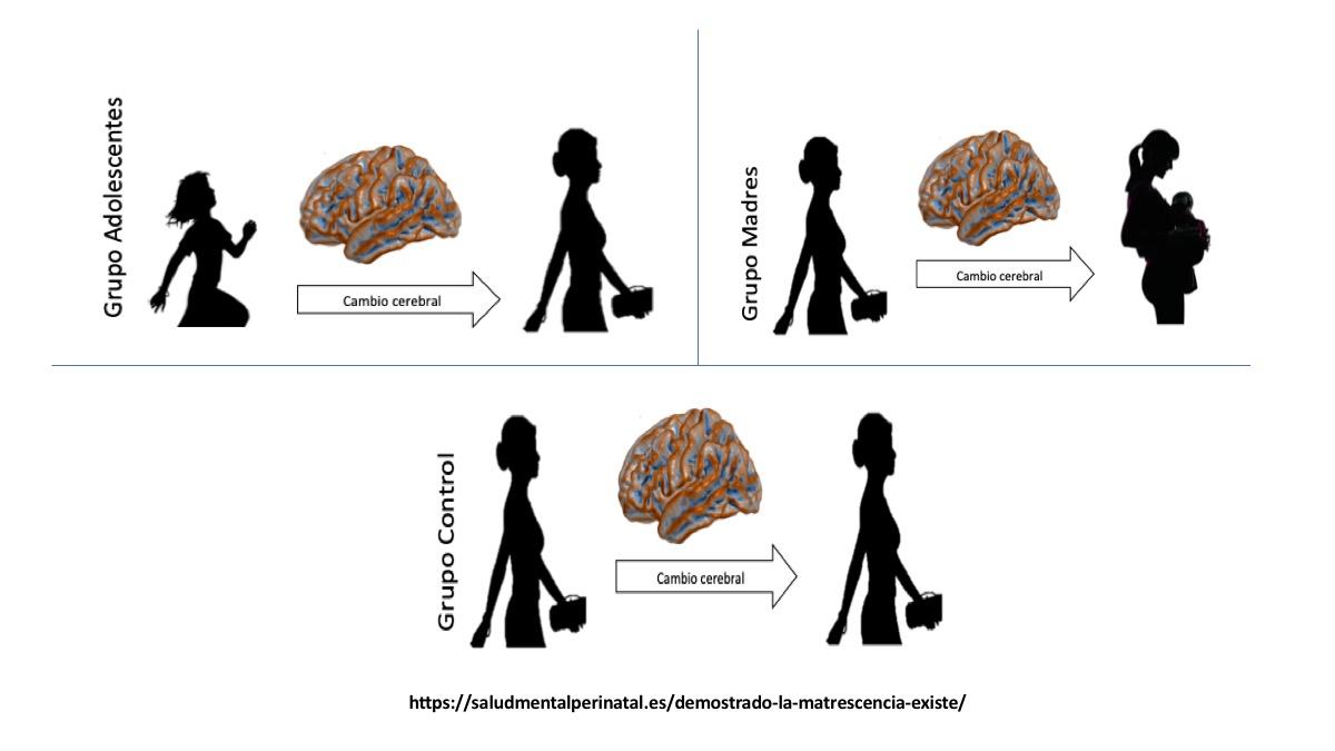 Matrescencia:  el cerebro de las embarazadas se transforma tanto como durante la adolescencia